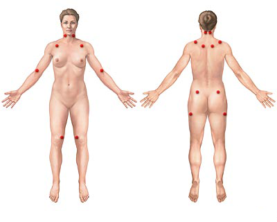b2ap3_thumbnail_fibromialgia.png